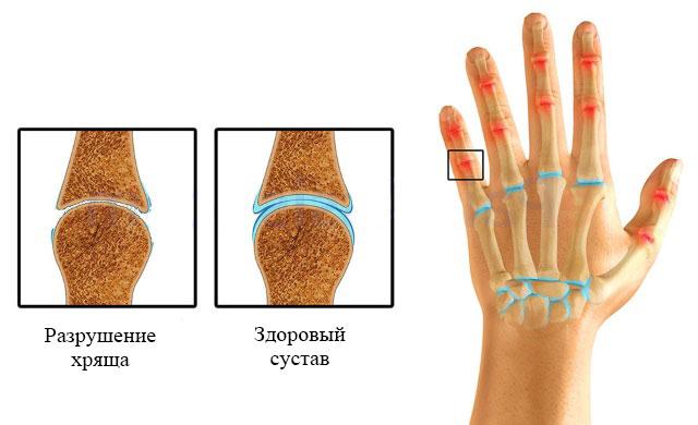 полиостеоартроз суставов пальцев кисти