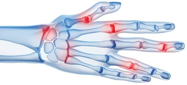 артрит кисти