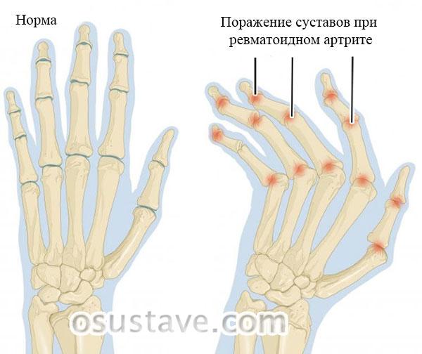 кисть в норме и при ревматоидном артрите