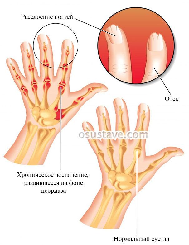 кисть при псориатическом артрите