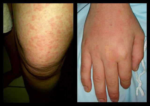 сыпь и поражение суставов кисти при болезни Стилла