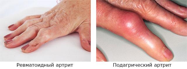 припухлость при ревматоидном и подагрическом артрите