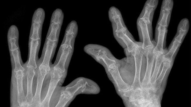 рентгеновский снимок рук, пораженных артритом