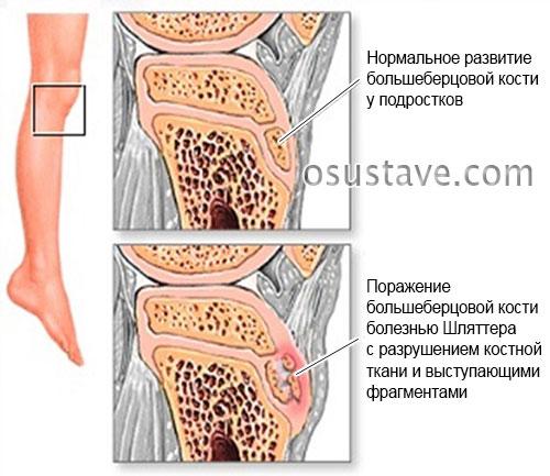 деформация бугорка большеберцовой кости