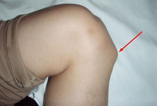 отечное уплотнение на голени при болезни Шляттера
