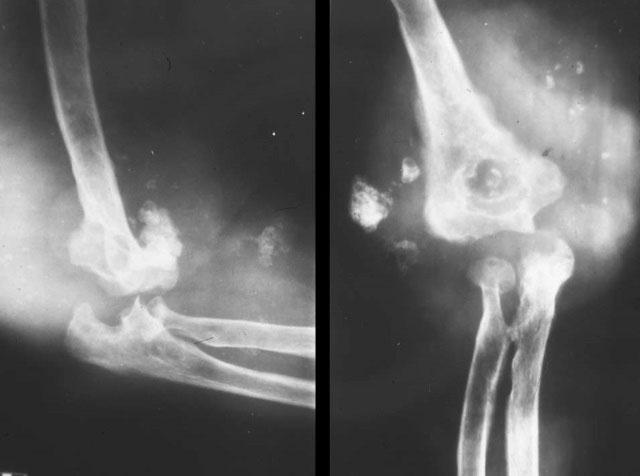 хондросаркома дистального отдела плечевой кости