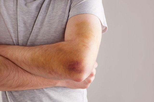 гематома в области локтевого сустава