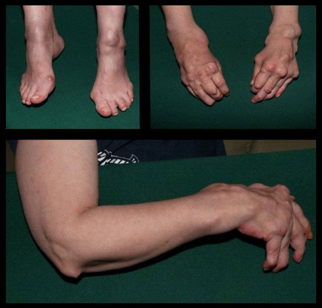 Операции на суставах при артрите фото