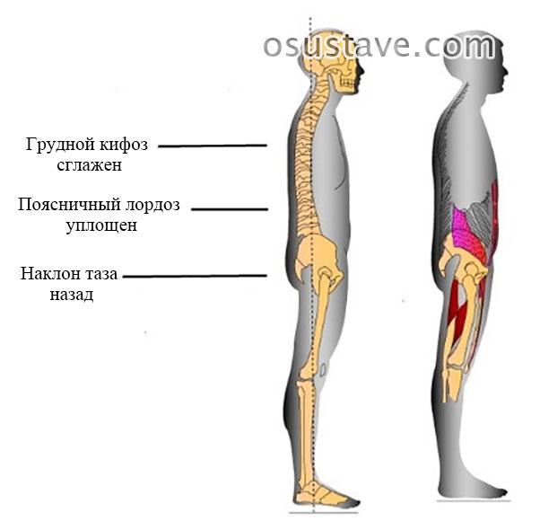 синдром плоской спины