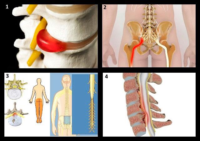 осложнения остеохондроза