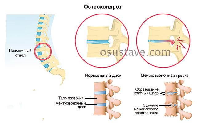 остеохондроз поясничного отдела