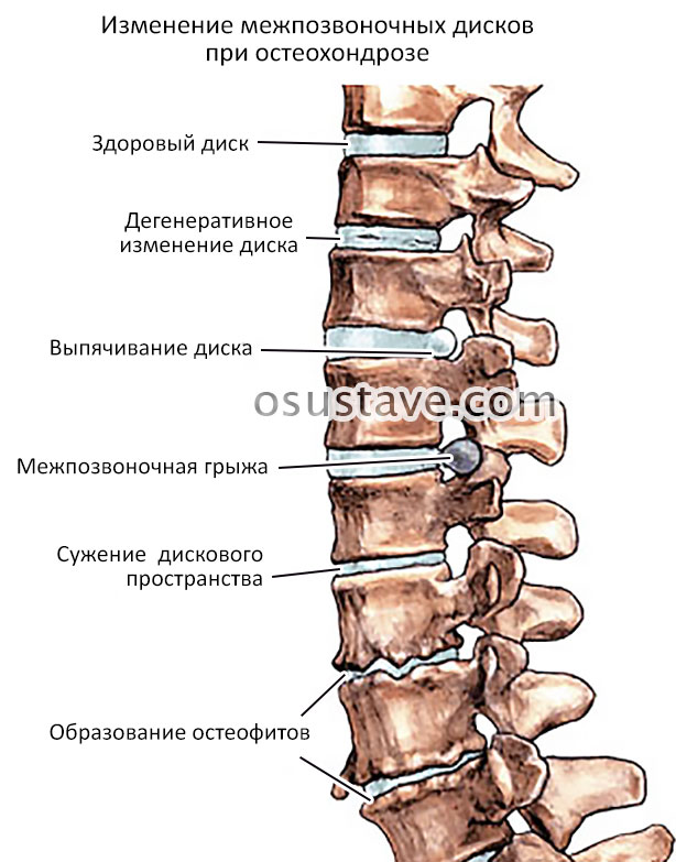 изменение межпозвоночных дисков при остеохондрозе