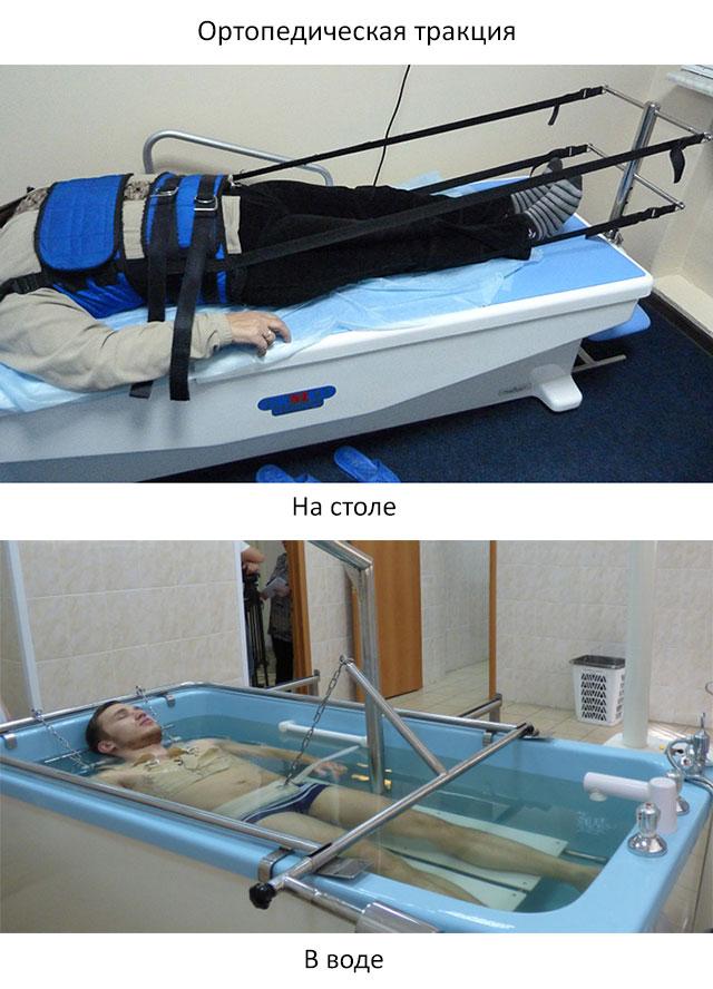 ортопедическая тракция на столе и в воде