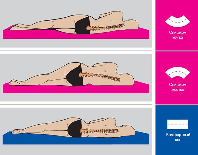 положение тела на правильно подобранном матрасе