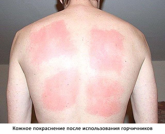 кожа после проведения процедуры