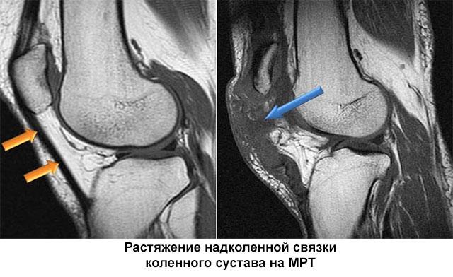 МРТ коленного сустава при растяжении связок
