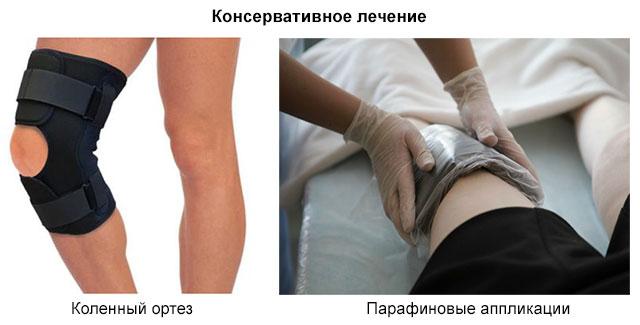 коленный ортез и парафиновые аппликации на колено
