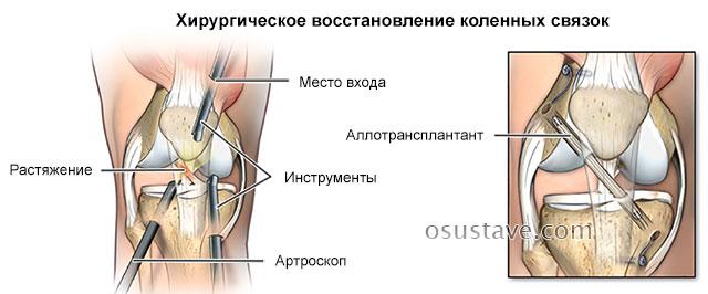 хирургическое восстановление коленных связок