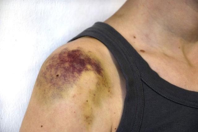 гематома при травме плеча