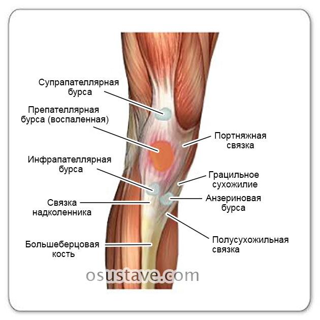 препателлярный бурсит и другие бурсы коленного сустава