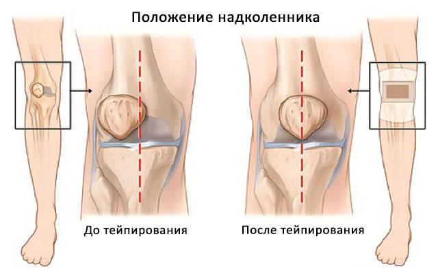 коленный сустав до и после тейпирования