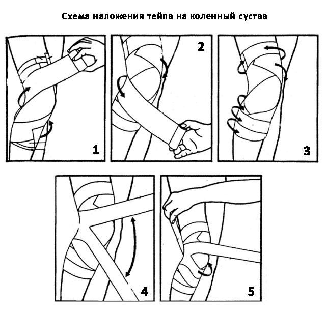 техника наложения тейпа на коленный сустав
