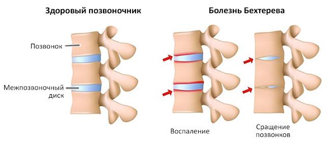 болезнь Бехтерева