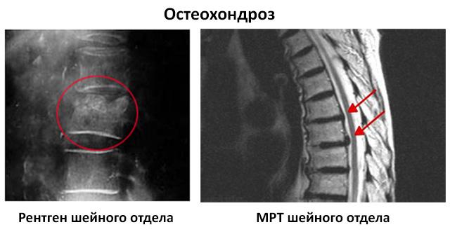 МРТ и рентген грудного отдела при остеохондрозе