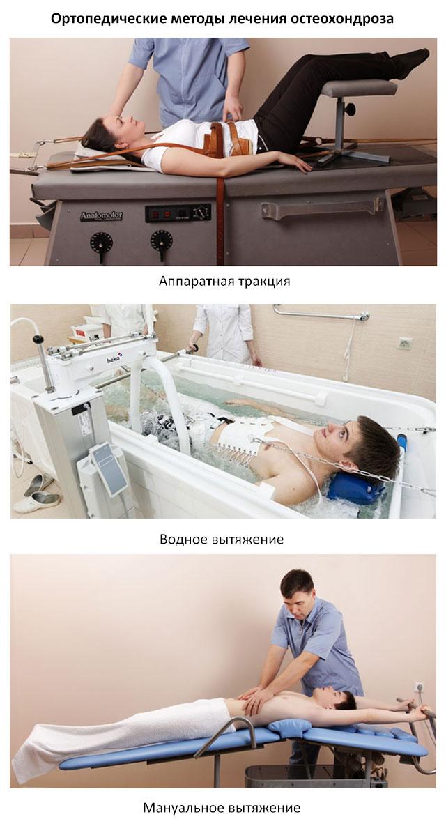 ортопедические методы лечения остеохондроза грудного отдела