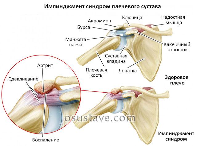 Импинджмент синдром плечевого сустава: лечение и упражнения