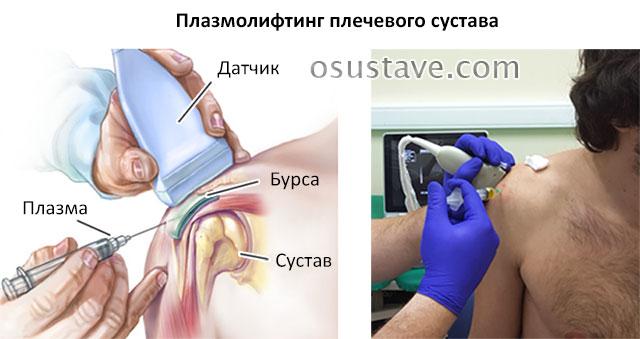 плазмолифтинг плечевого сустава