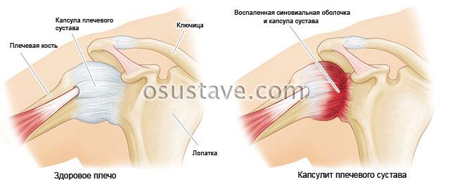 Капсулит плечевого сустава симптомы и лечение