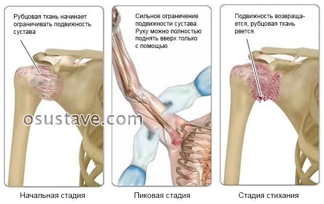стадии капсулита
