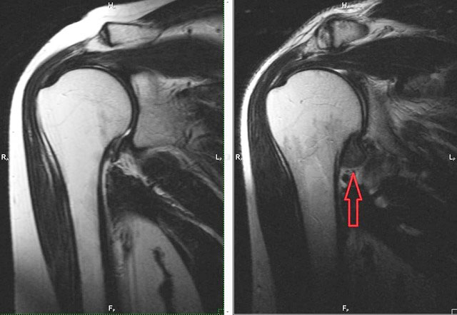 МРТ снимок здорового сустава и с капсулитом