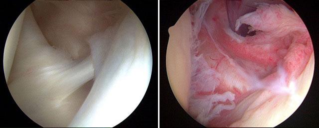 результат артроскопии здорового плечевого сустава и пораженного капсулитом