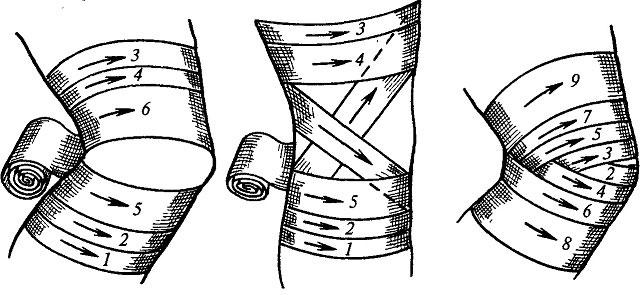 варианты правильного бинтования колена