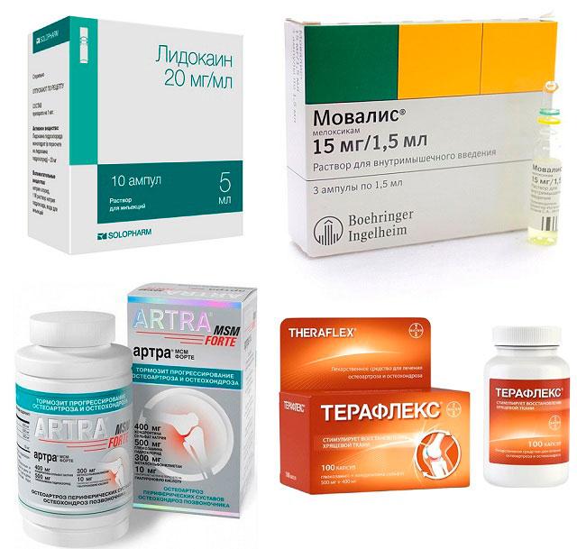 препараты Лидокаин, Мовалис, Артра, Терафлекс