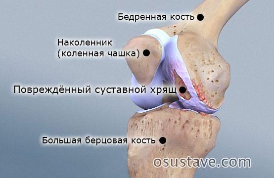 поврежденный суставной хрящ