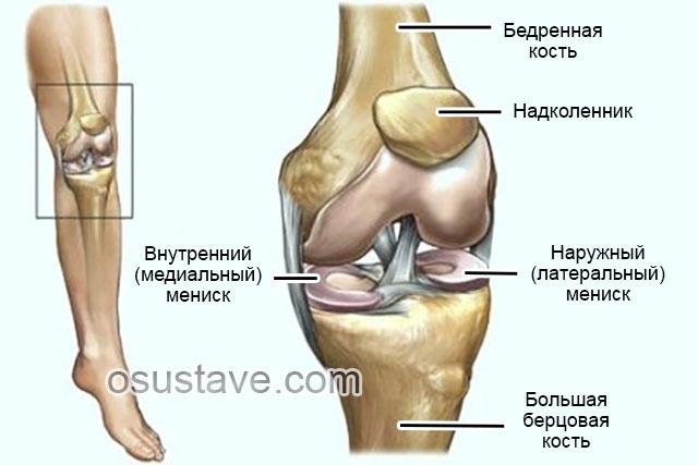 Лечение разрыва мениска коленного сустава без операции