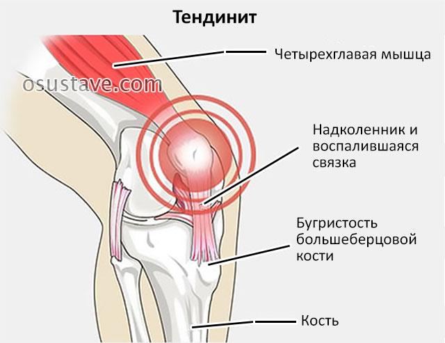 Пухнет колено и болит что делать thumbnail
