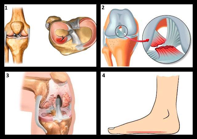 Болят колени после бега причины диагностика и лечение