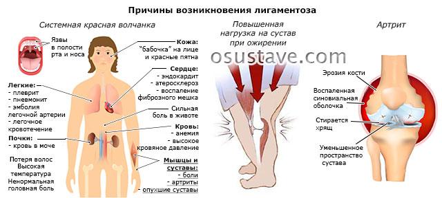 возможные причины возникновения лигаментоза – системная красная волчанка, повышенная нагрузка на суставы при ожирении, ревматоидный артрит