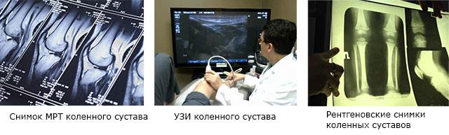 снимок МРТ коленного сустава, УЗИ коленного сустава, рентгеновские снимки коленных суставов