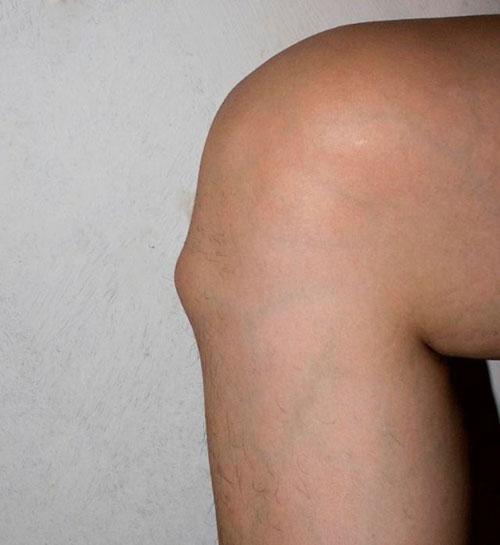 остеохондропатия Осгуда – Шляттера