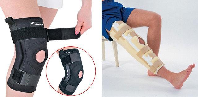 бандаж на колено, гипсовая повязка