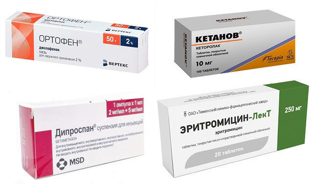 препараты Ортофен, Кетанов, Дипроспан и Эритромицин