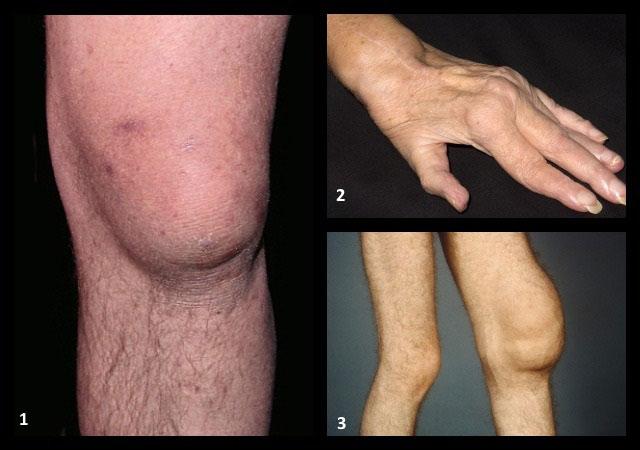 бурсит, ревматоидный артрит, синовит