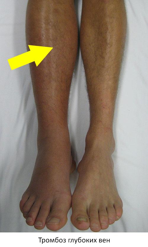 Сильно болит нога под коленом сзади и в икре thumbnail
