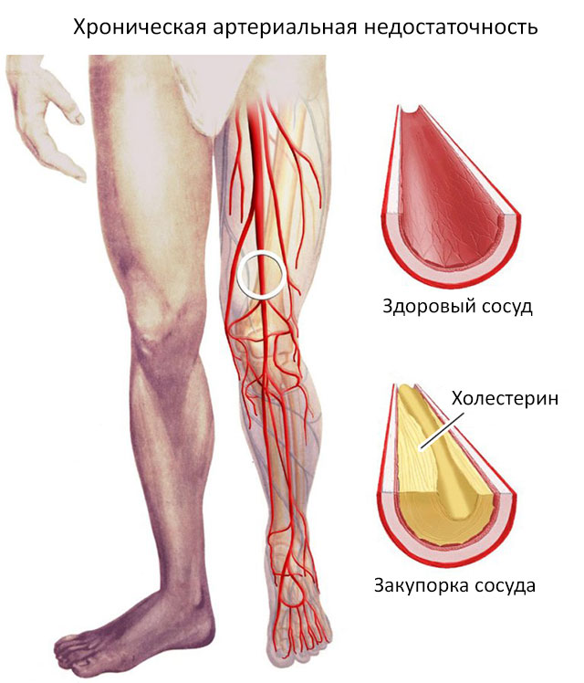хроническая артериальная недостаточность