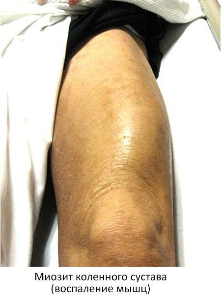 миозит подколенных мышц